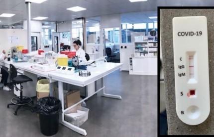 L'Alsacien Biosynex prêt à commercialiser entre 2 et 3 millions de tests sérologiques avant la fin avril