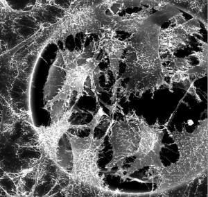 Cellules sur une surface en titane.