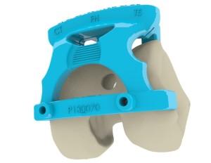 OneFit Medical est spécialisée dans les solutions de chirurgie orthopédique pour la pose de prothèses du genou et de la hanche.
